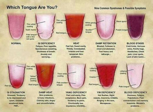 toungue